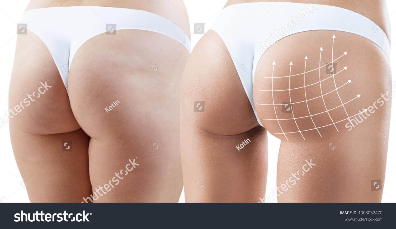 118 ngàn hình ảnh cặp mông chất lượng cao dành cho in ấn thiết kế
